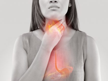 mulher com refluxo gástrico