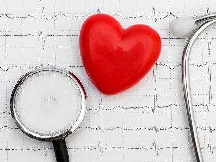 Exame que mostra arritmia cardíaca