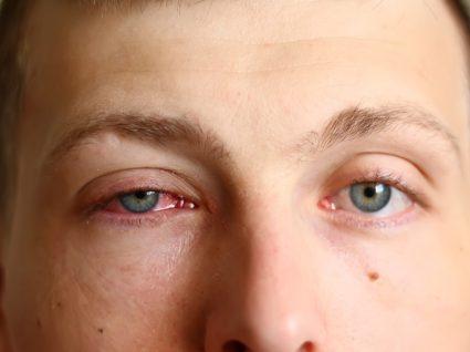 homem com conjuntivite no olho