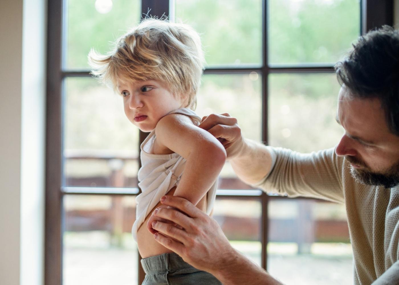criança com eczema atópico