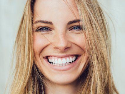 Mulher após branqueamento dentário