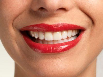 Sorriso depois de branquear os dentes