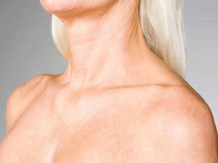 Mulher com rugas no peito