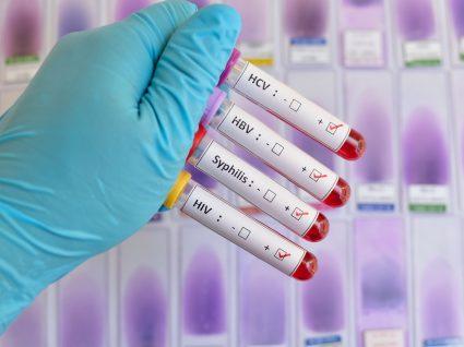 Análises de doenças sexualmente transmissíveis