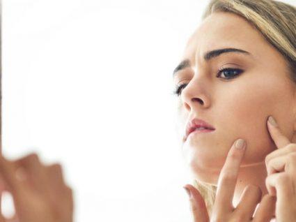 Os melhores produtos para eliminar as marcas do acne