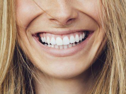 Branqueamento dentário: 7 opções para um sorriso mais branco