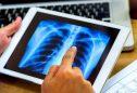 A pneumonia: causas, sintomas e tratamento