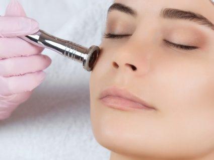Tratamentos para acne: quais são e em que consistem