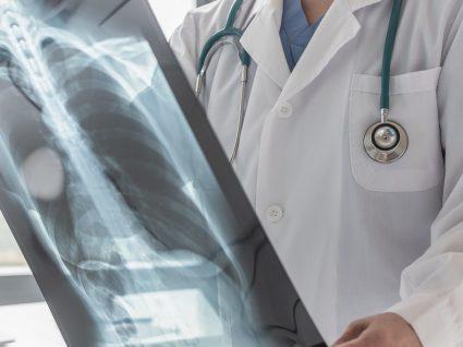 Tipos de cancro que mais matam em Portugal: saiba quais são