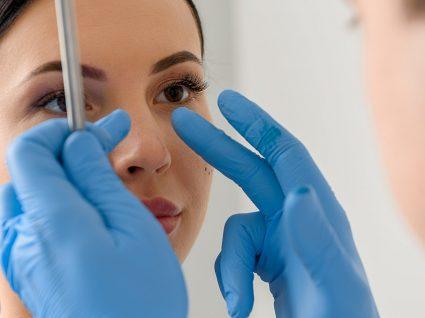 Rinoplastia: melhore o seu visual e a sua saúde