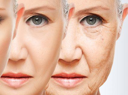 Conheça os melhores cremes anti-rugas segundo os dermatologistas