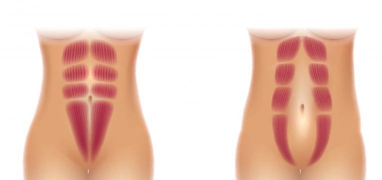 A diástase abdominal pode comprometer todas ou parte das funções da parede abdominal