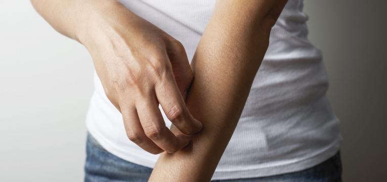 pessoa a coçar o braço por picada de inseto