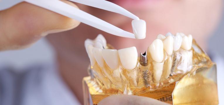 conheça os tipos de implantes dentários