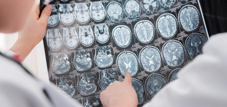 saiba tudo sobre doenças cerebrovasculares