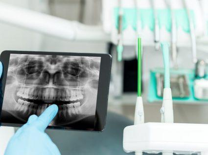 Implante dentário: o que é, tipos e preços