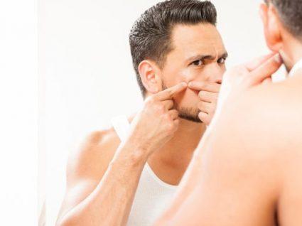 Os 6 melhores cremes anti-acne para homem