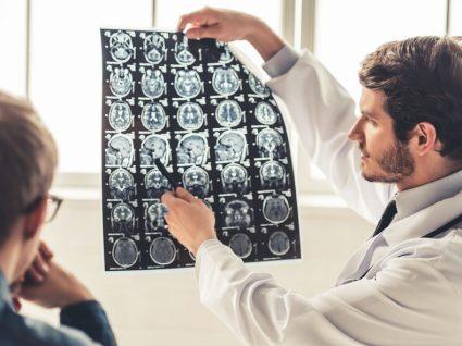 Cancro do cérebro: 8 sinais de alerta que não deve ignorar