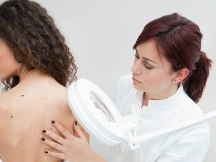 Pitiríase: o que é e como distinguir este problema de pele