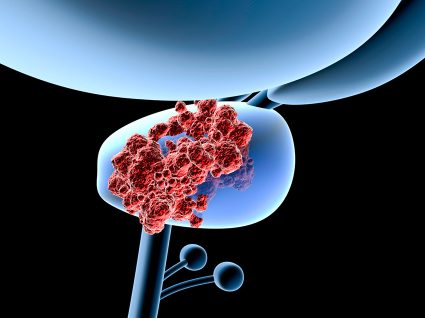Cancro da próstata: tudo o que precisa saber
