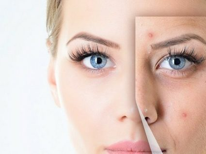Tenha atenção a estes 6 hábitos que arruinam a pele
