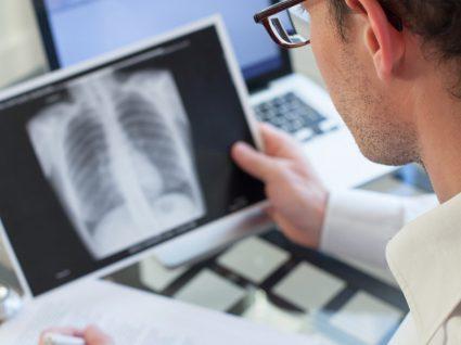Enfisema pulmonar: causas, sintomas e tratamento
