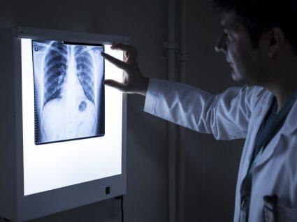Carcinoma: o que é e principais características
