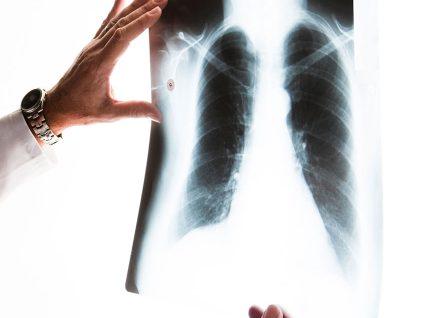 Doença Pulmonar Obstrutiva Crónica: o diagnóstico