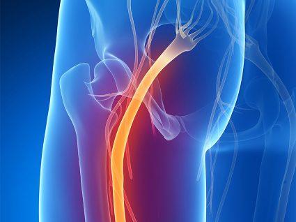 Dor ciática: causas e sintomas