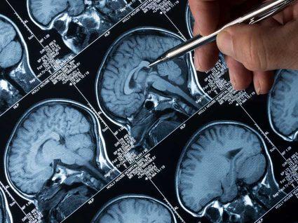 Conheça os sintomas da epilepsia