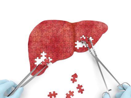 Tudo sobre a Hepatite e os seus sintomas