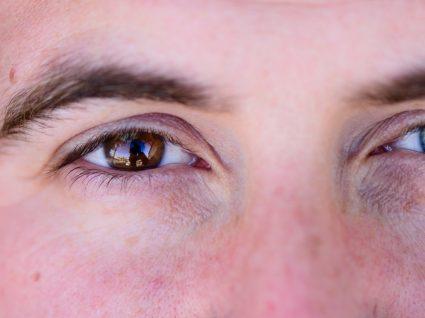 Síndrome de Waardenburg: tipos, sintomas e tratamento
