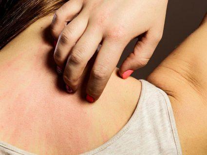 8 alergias raras que o vão surpreender