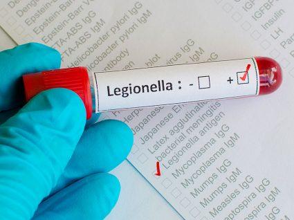 Legionella: transmissão e sintomas
