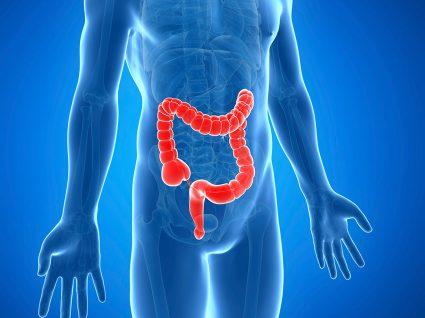 Níveis altos de insulina associados a um maior risco de ter cancro do intestino