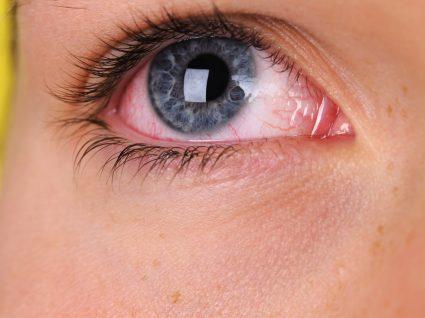 Olhos secos: saiba o que fazer