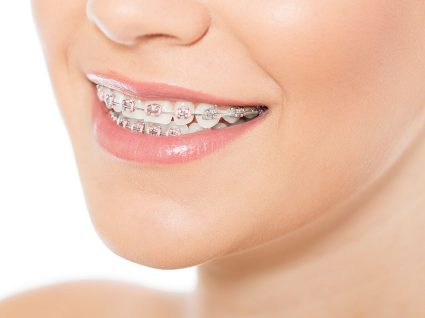 Ortodontia: quando, como e quanto custa
