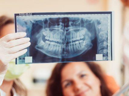 Ortopantomografia: o que é e para que serve