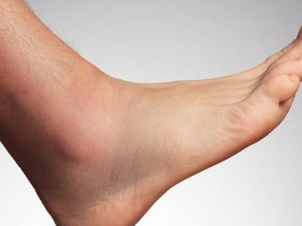 Do tornozelos como nos reduzir o calor inchaço