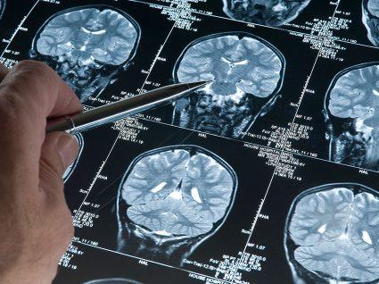 Possível tratamento para Alzheimer revela-se promissor após ensaios