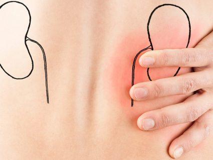 Pedras nos rins: sintomas, causas e tratamento