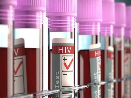Sintomas de HIV: Vírus da Imunodeficiência Humana
