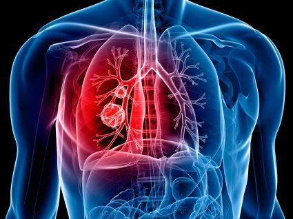 7 sintomas do cancro do pulmão
