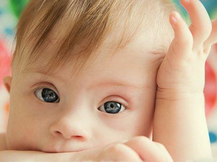 Trissomia 21: saiba mais sobre esta condição genética
