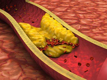 Trombose: principais tipos e formas de prevenção