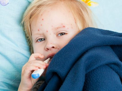 Varicela: contágio e tratamento