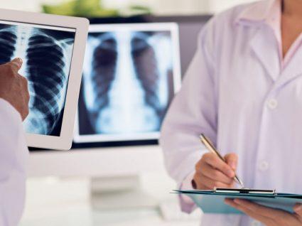 Cancro do esófago: fatores de risco, sintomas e tratamento