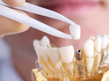 dentista a testar um implante dentário