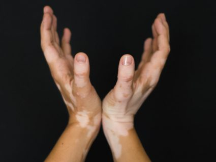 Doenças de pigmentação: o que são e como lidar com elas