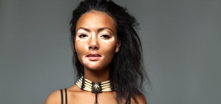 doenças pigmentação vitiligo
